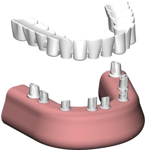 Prothèse dentaire vissée