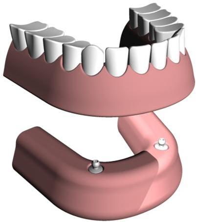 Prothèse stabilisée sur deux implants