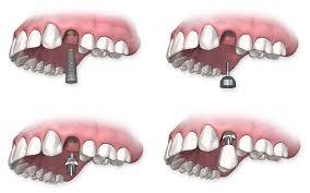 Prothèse dentaire unitaire