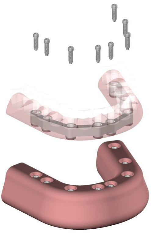 Prothèse transvissée